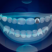 Симулятор стоматолога